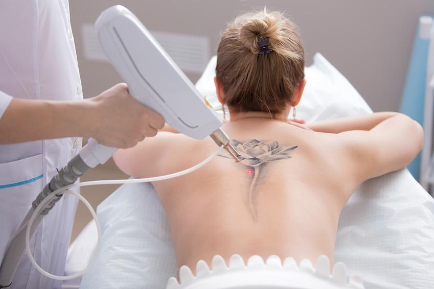 Tattooentfernung per Laser auf dem Rücken