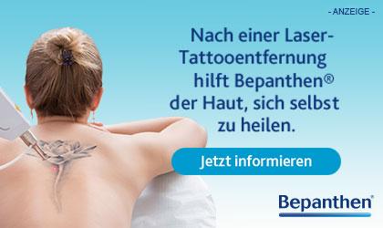 Nach Laser-Tattooentfernung hilft Bepanthen